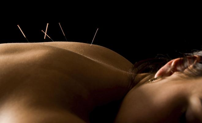 acupuncture cancer