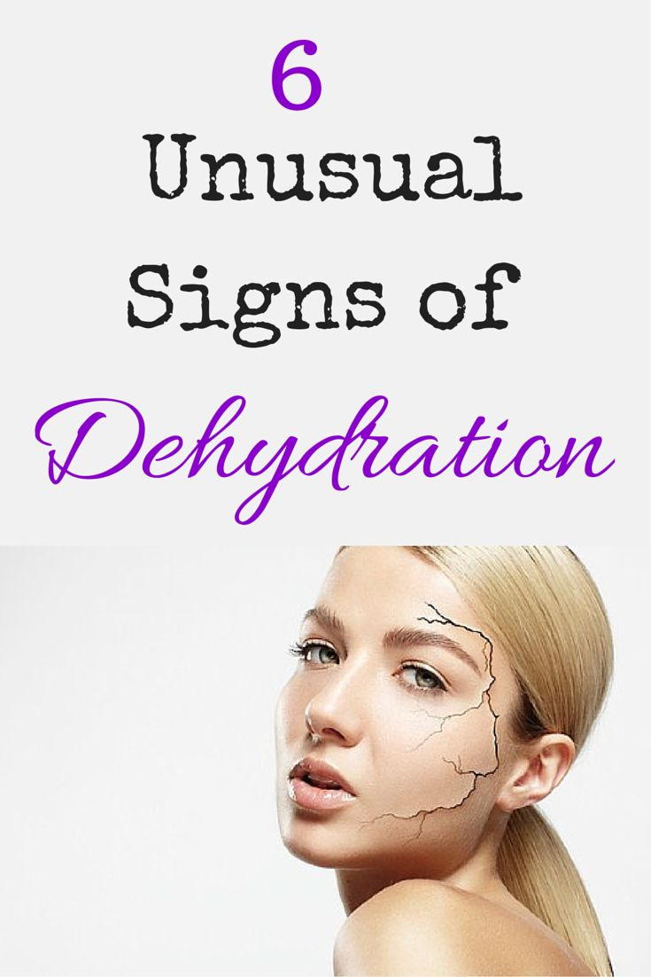 6 Unusual Signs of Dehydration