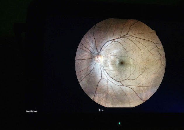 Check out my eye!