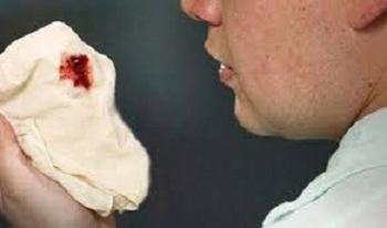Obat Mengobati Batuk Berdarah Yang Bisa Mengakibatkan Kematian
