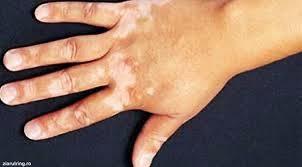 penyakit vitiligo pada tangan