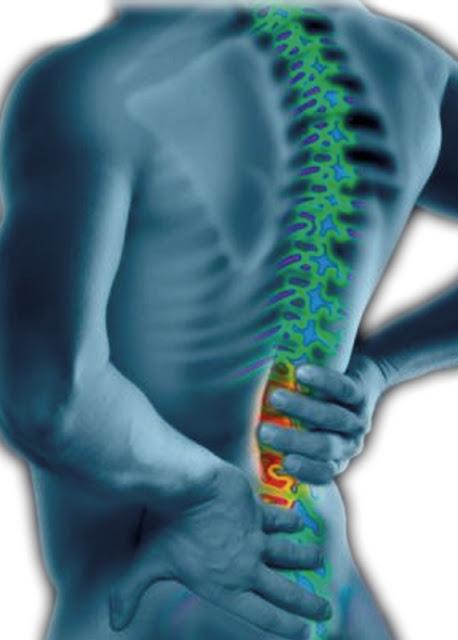 Corset premium beautiful boleh mengurangkan sakit belakang akibat slipped disc