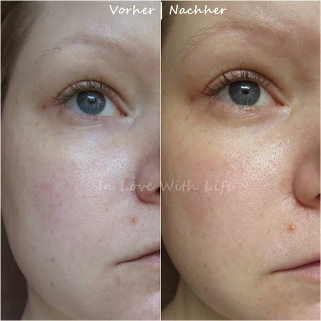 Balea Beauty Effect Lifting Kur und Eye Lift Serum Vorher/Nachher