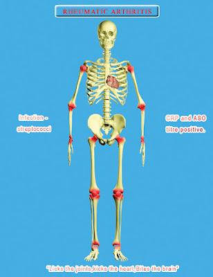 Joint pain treatment, mootu vali treatment, arthritis treatment in chennai, kai kal vali treatment, muti vali sikichai,