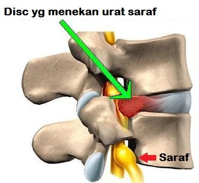 Corset premium beautiful boleh mengurangkan sakit belakang akibat slipped disc from hai-o