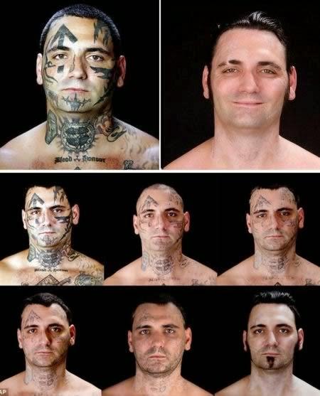 El ex pandillero que se sometió a 25 cirugías para quitar los tatuajes de su rostro