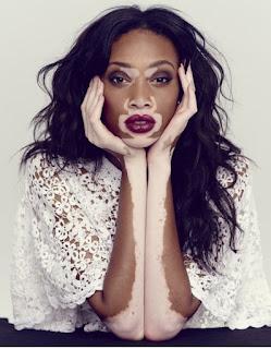 Mannequin Winnie Harlow Vitiligo égérie Deisgual Mode Découverte