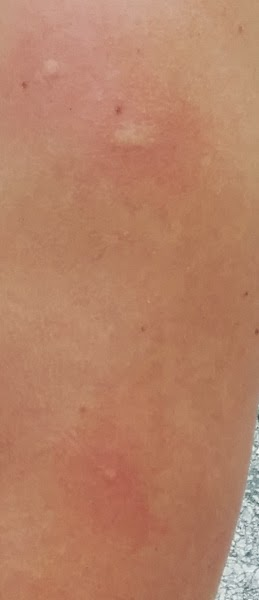 Chikungunya costa rica
