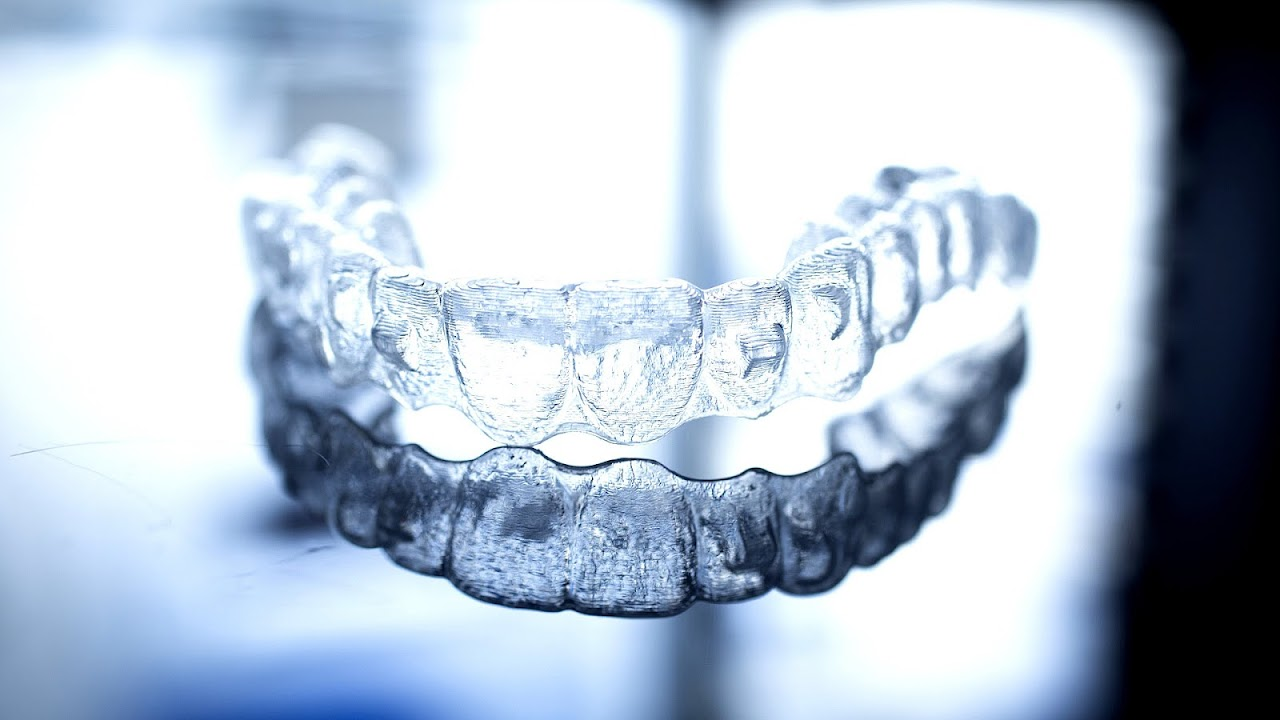Are Invisalign Braces Effective Effect Choices