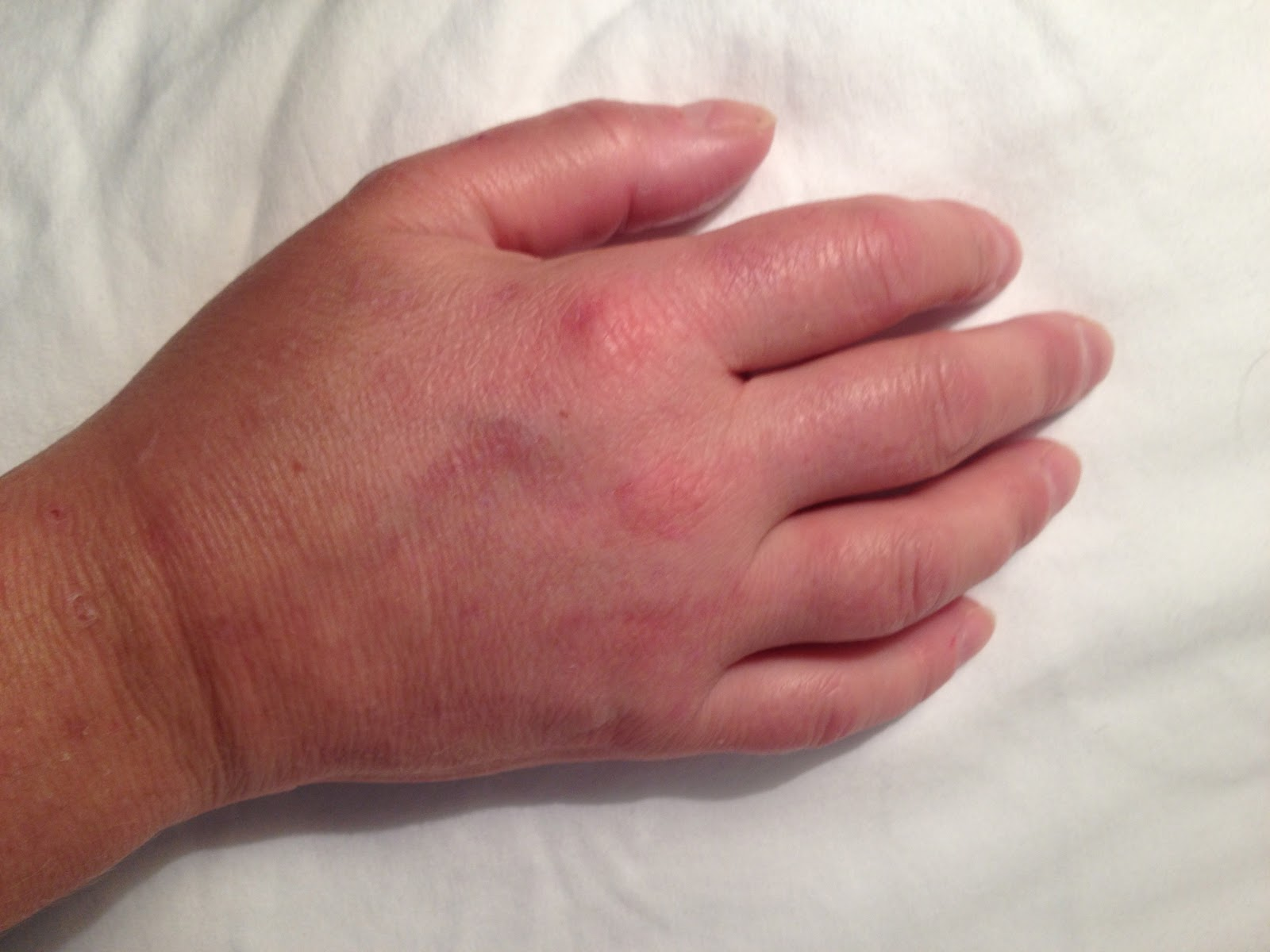 Swollen Thumb, Joint, Pad, Knuckle Causes, Treatment