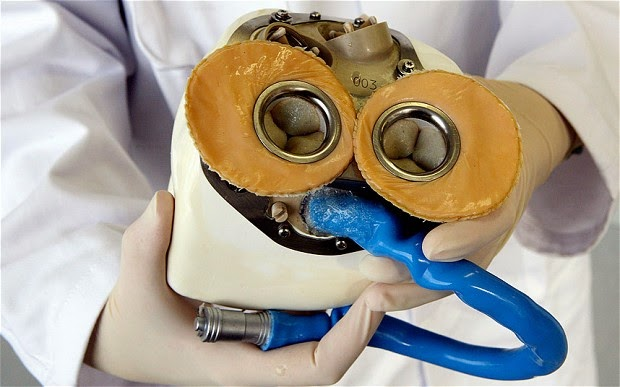 World's first Artificial-heart