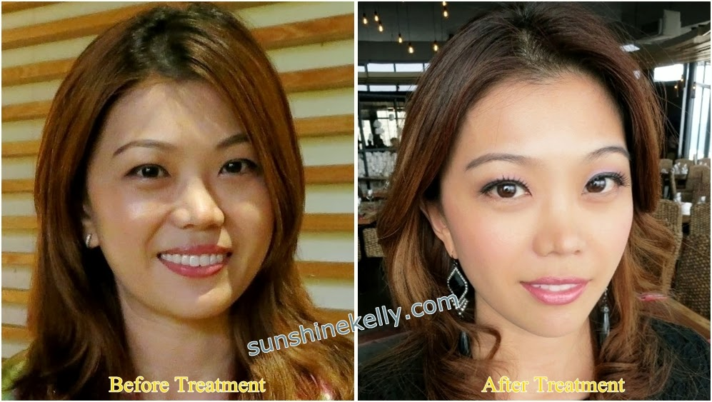 Thermage Treatment Face Hands Knees, thermage treatment, solta medical, Damansara Heights Wellness Clinique, non invasive radio frequency, non surgical face lift