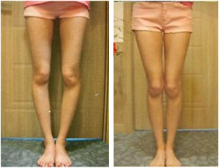 pretty legs care, leg correction care, bowed legs, legs straightening, bow legs