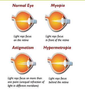 Refractive Errors of the Eye