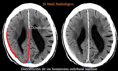 subdural+laminar++5.png