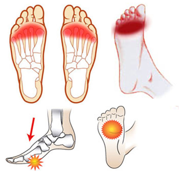 freiberg voet