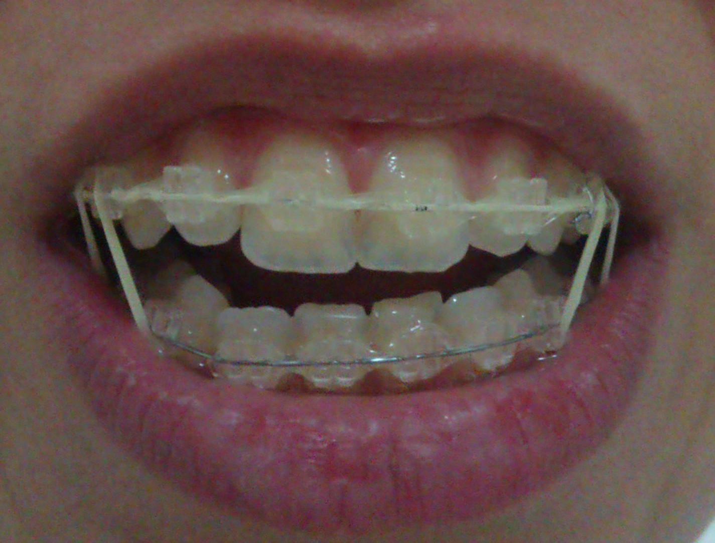 La pasta de diente no solo es para los dientes. Aquí hay 13 maneras geniales de usar que nunca esperabas