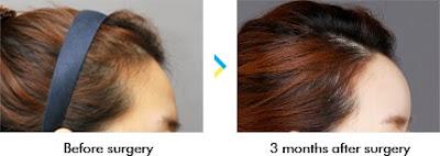 Korean face Contouring - Forehead Augmentation Wonjin
