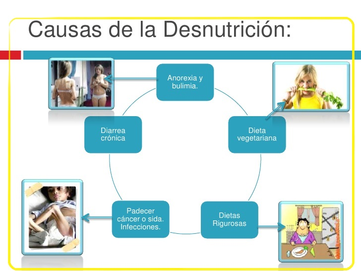 CAUSAS Y CONSECUENCIAS DE LA DESNUTRICION ~ LA NUTRICION
