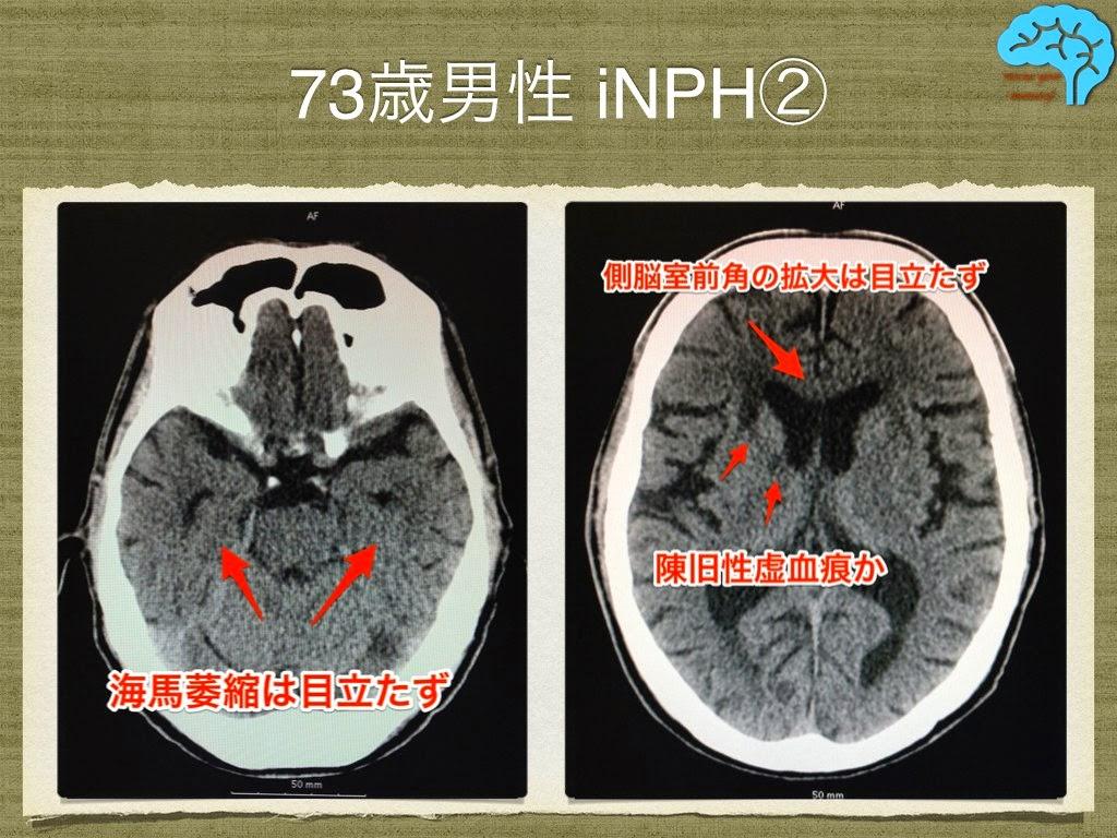 特発性正常圧水頭症の頭部CT画像