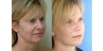 Lifestyle Face Lift