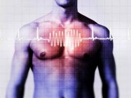 symptoms of heart arrhythmia