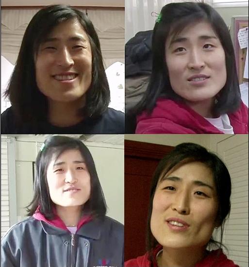 Cô gái Hàn Quốc trước khi phẫu thuật thẩm mỹ