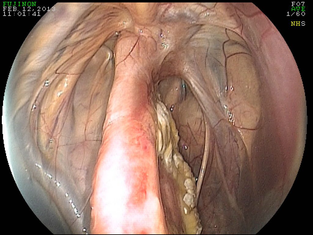 Guttural pouch mycosis in horses submited images