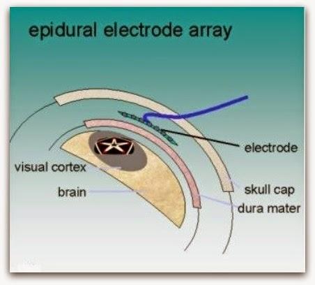 Artificial Eye Seminar Reports