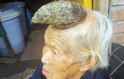 Nenek 87 Tahun Bertanduk Hebohkan Netizen