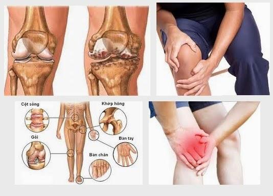 Đau nhức chân - Thoái hóa khớp gối hay suy tĩnh mạch mạn tính