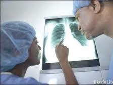 Pulmón infecciones