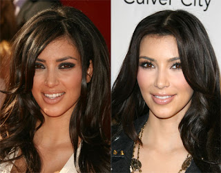 Kim Kardashian Nose Job