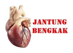 http://www.ramuantradisional.co.id/2015/08/tips-menghindari-serangan-penyakit-jantung-sejak-dini.html