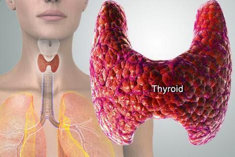 Obat Hipertiroid