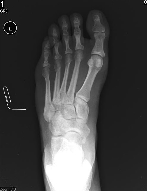 what you see to my left is an x ray of my foot in the image it is