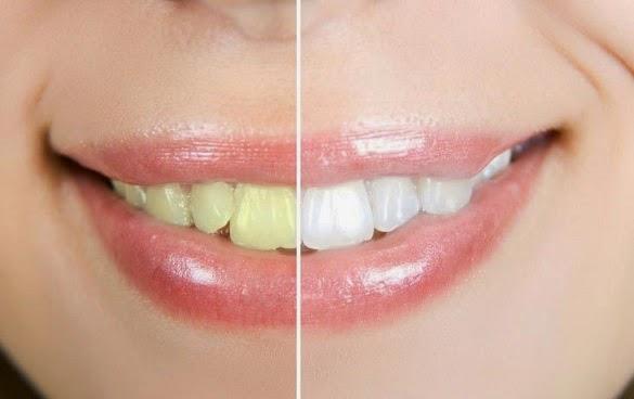 Obat Cara Memutihkan Mata Yang Kuning Cara Memutihkan Gigi Palsu
