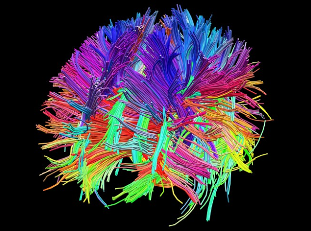 Obama to fund major neuroscience project