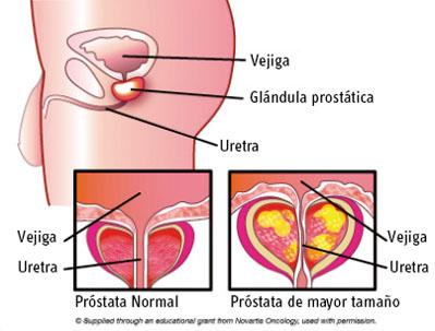 La Próstata, sus Funciones & enzimas importantes