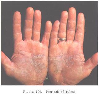 Pustulosa palmoplantar psoriasis (Barber)