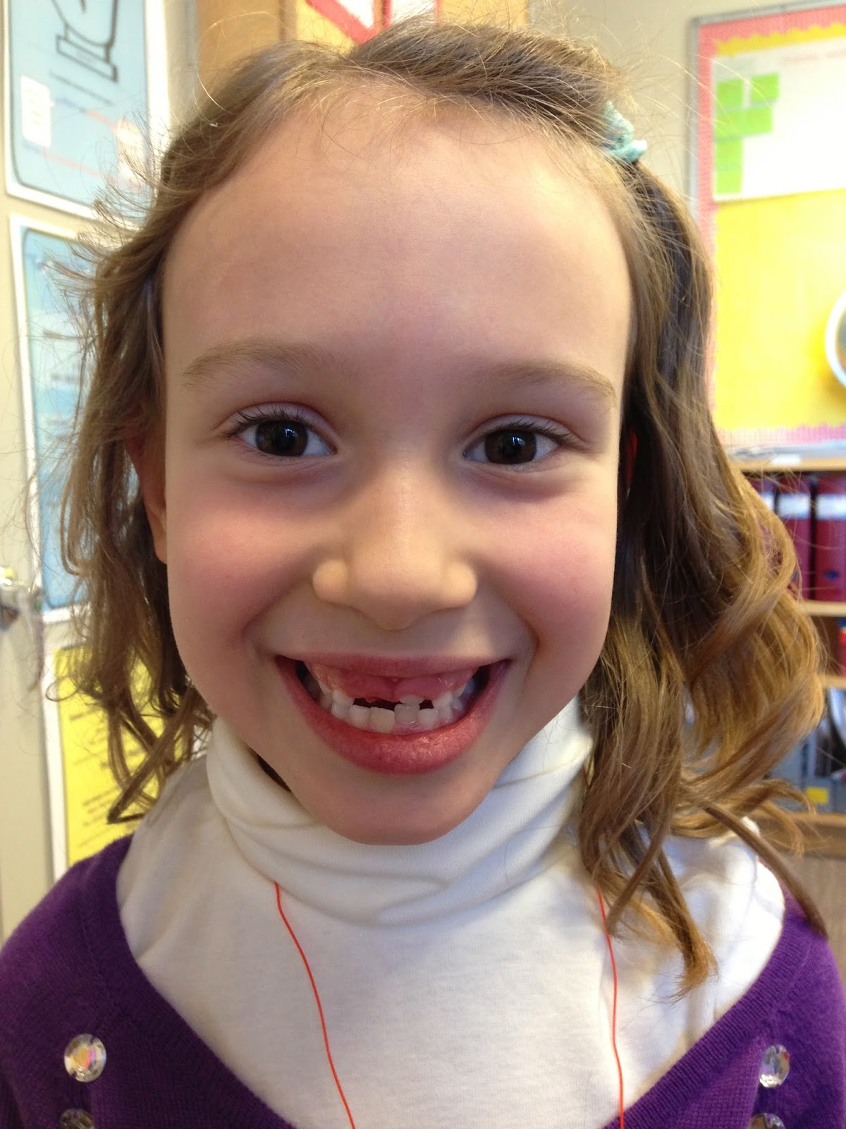 child missing front teeth - tooth fairy traditions