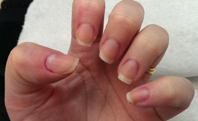 Nails after filing