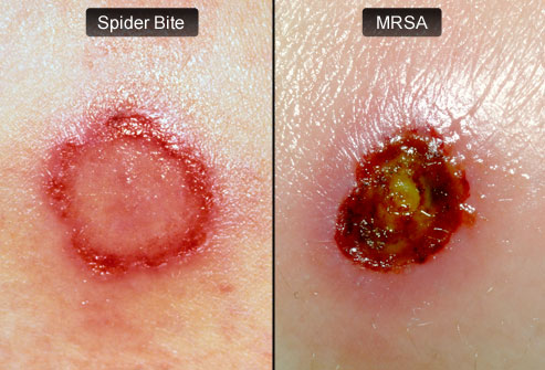 webmd rm photo of spider bite and mrsa