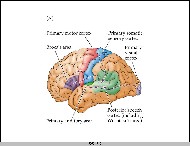 Spirited Speech Pathology: Aphasia 101