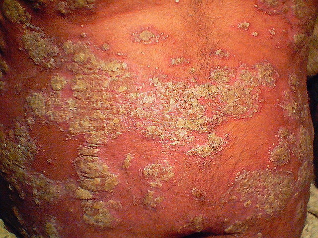 how to get rid of plaque psoriasis
