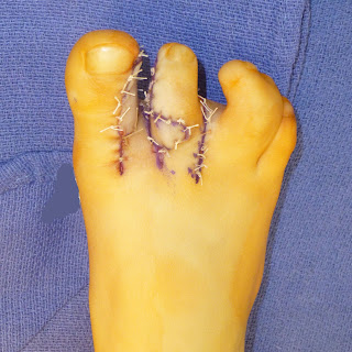 Toe Syndactyly | Congenital Hand and Arm Differences