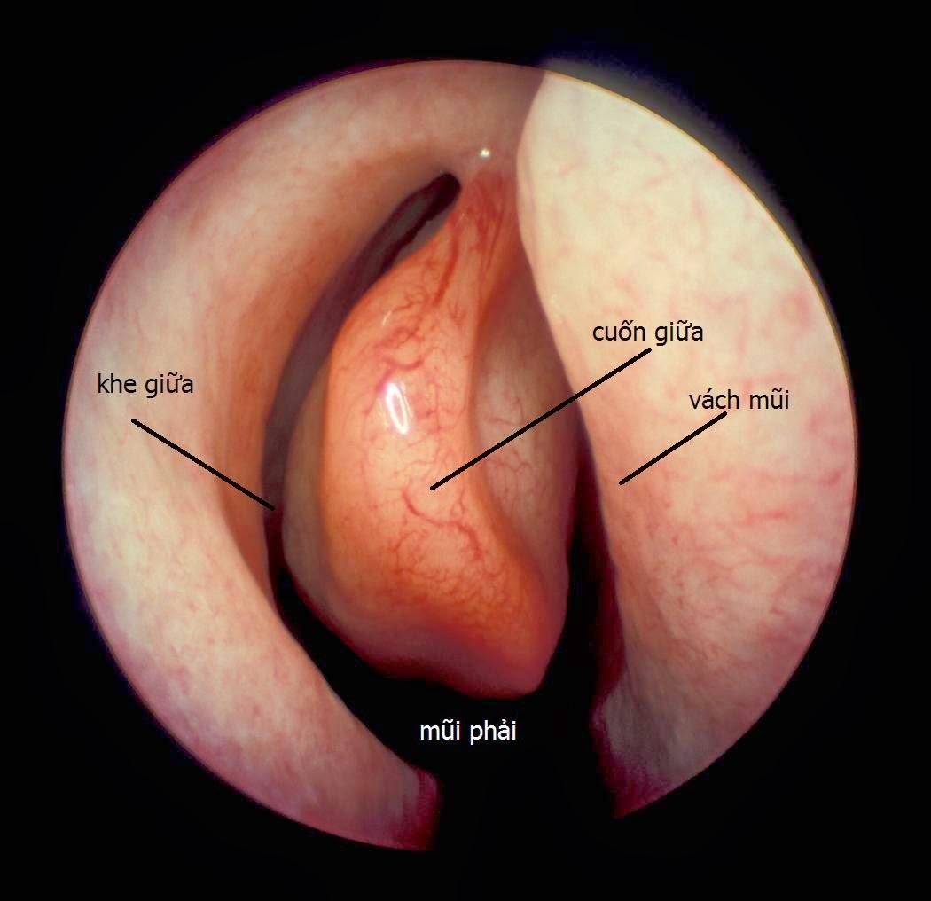 Atlas nội soi tai mũi họng - Tài liệu học tập bác sĩ đa khoa