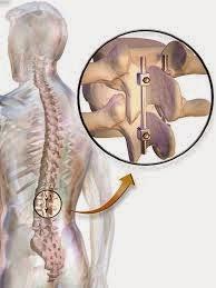 Penyebab sakit pinggang sebelah kiri bagian belakang
