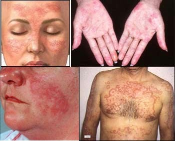 obat lupus buah merah
