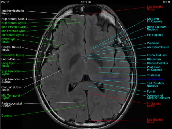 Brain MRI Anatomy | Radiology Anatomy Images